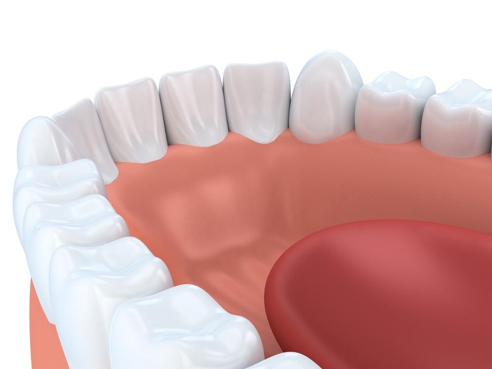 Kakšne so posledice, če manjkajočih zob ne nadomestijo implantati